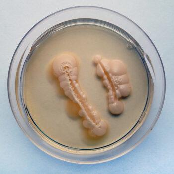 Imagem:Colônia de fungos Candida albicans em Placa de Petri.