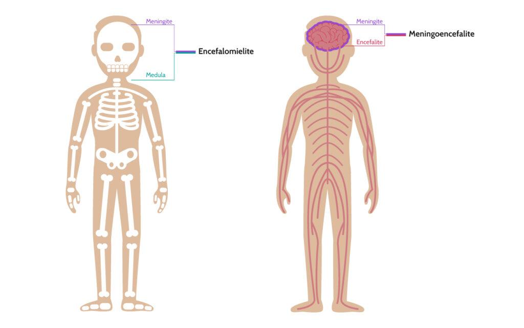 encefalomielite e meningoencefalite