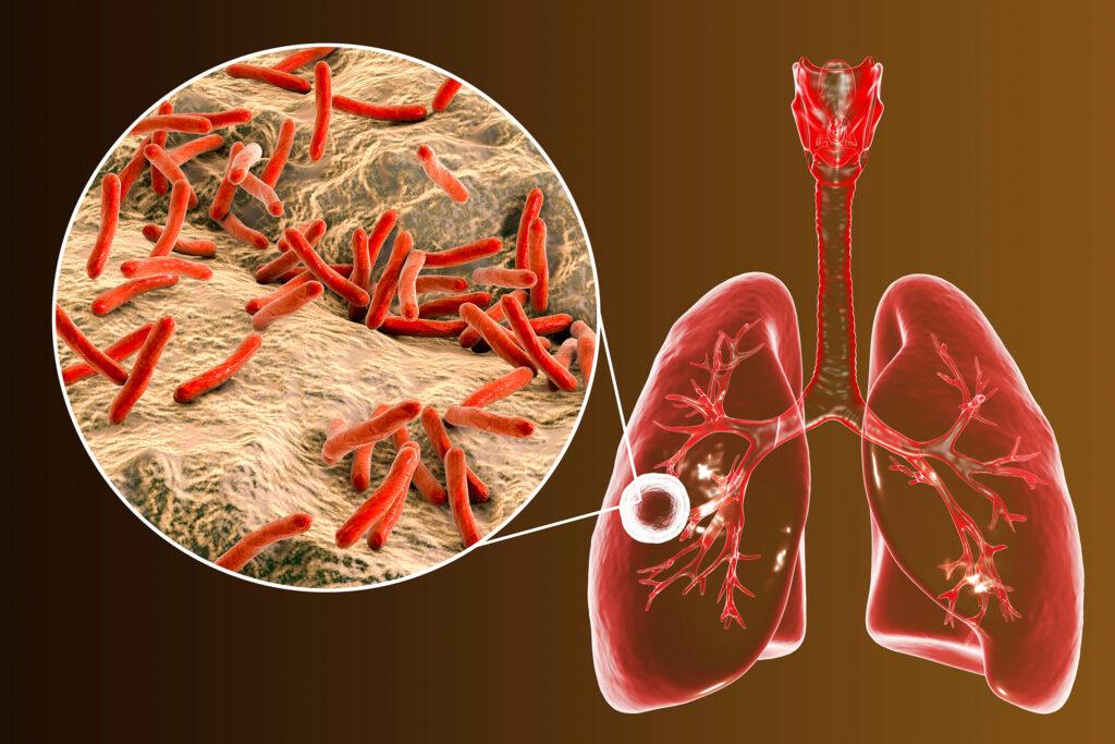 Tuberculose pulmonar e visão ampliada da bactéria Mycobacterium tuberculosis