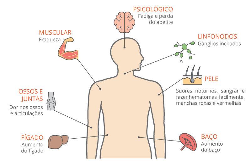 Sintomas Leucemia